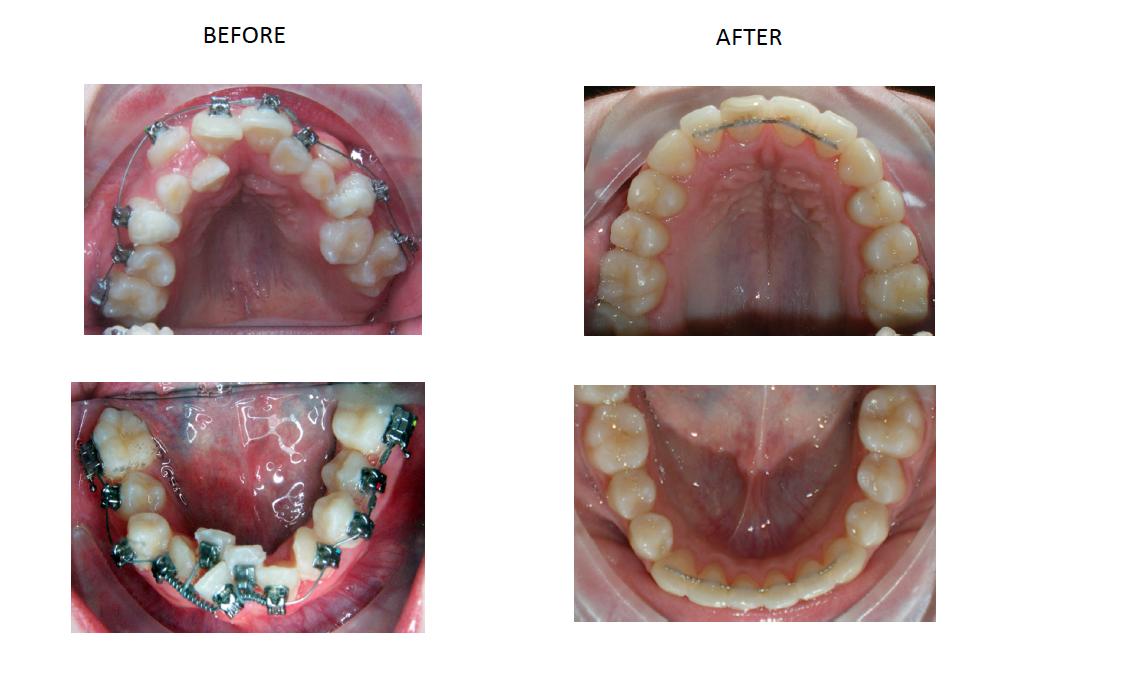 Damon Braces Barron Orthodontics Lutherville Timonium Md